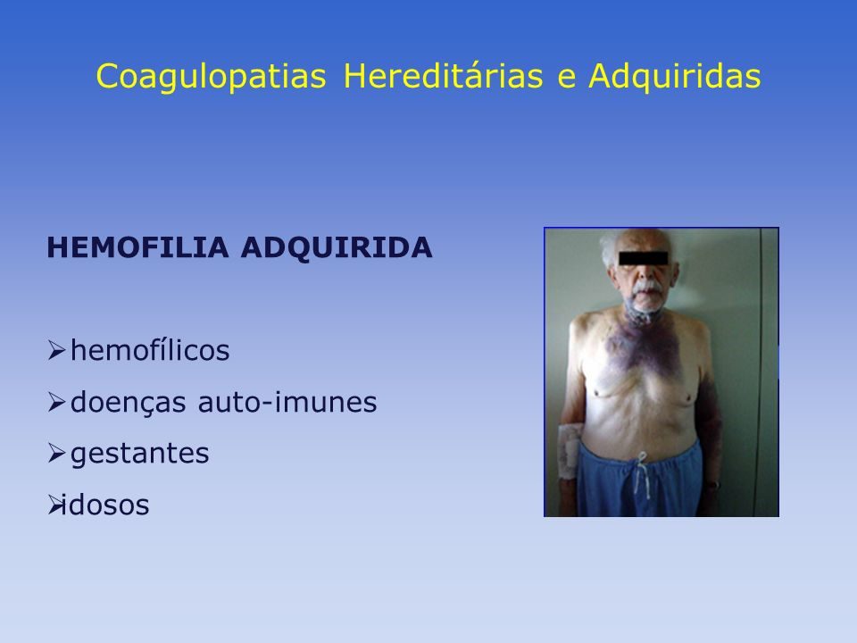 Coagulopatias Hereditárias e Adquiridas