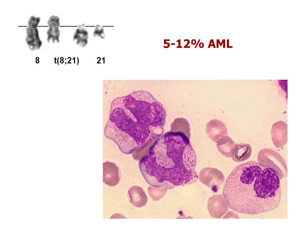 5-12% AML 8 t(8;21) 21