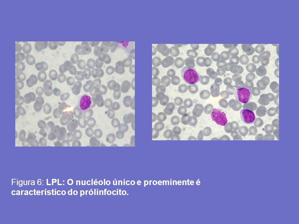 Figura 6: LPL: O nucléolo único e proeminente é