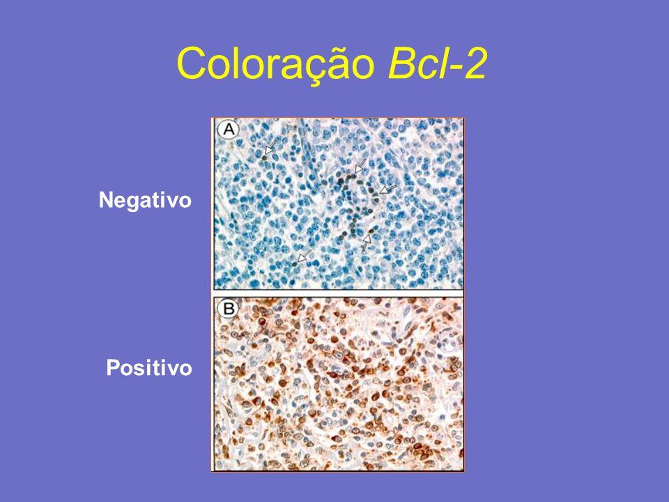 Coloração Bcl-2 Positivo Negativo