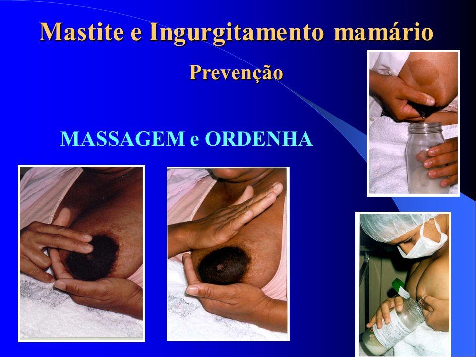 Mastite e Ingurgitamento mamário