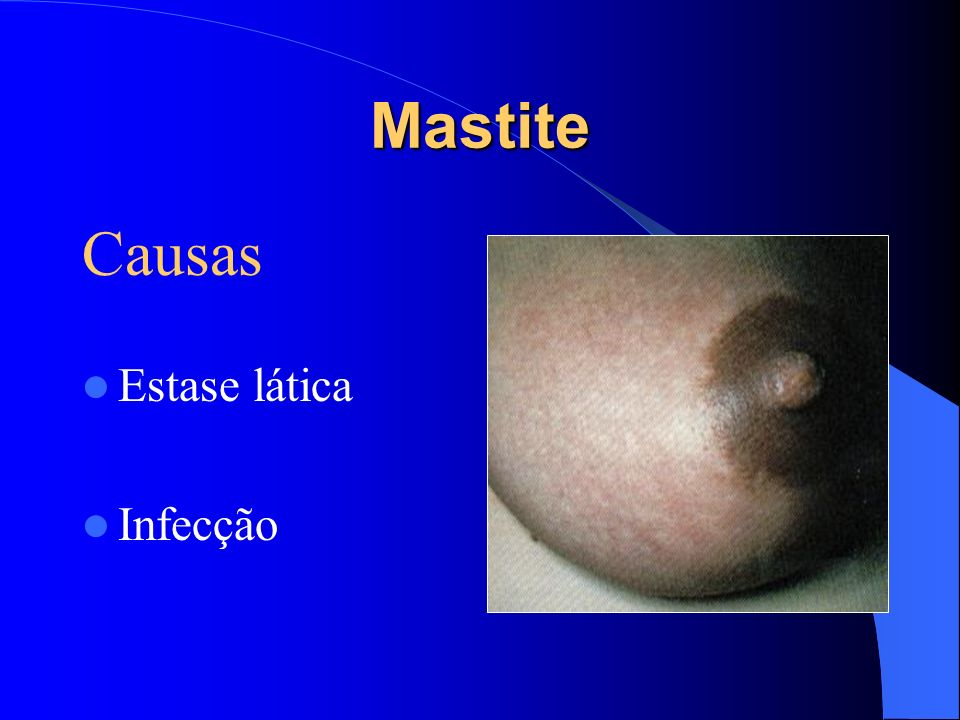 Mastite Causas Estase lática Infecção
