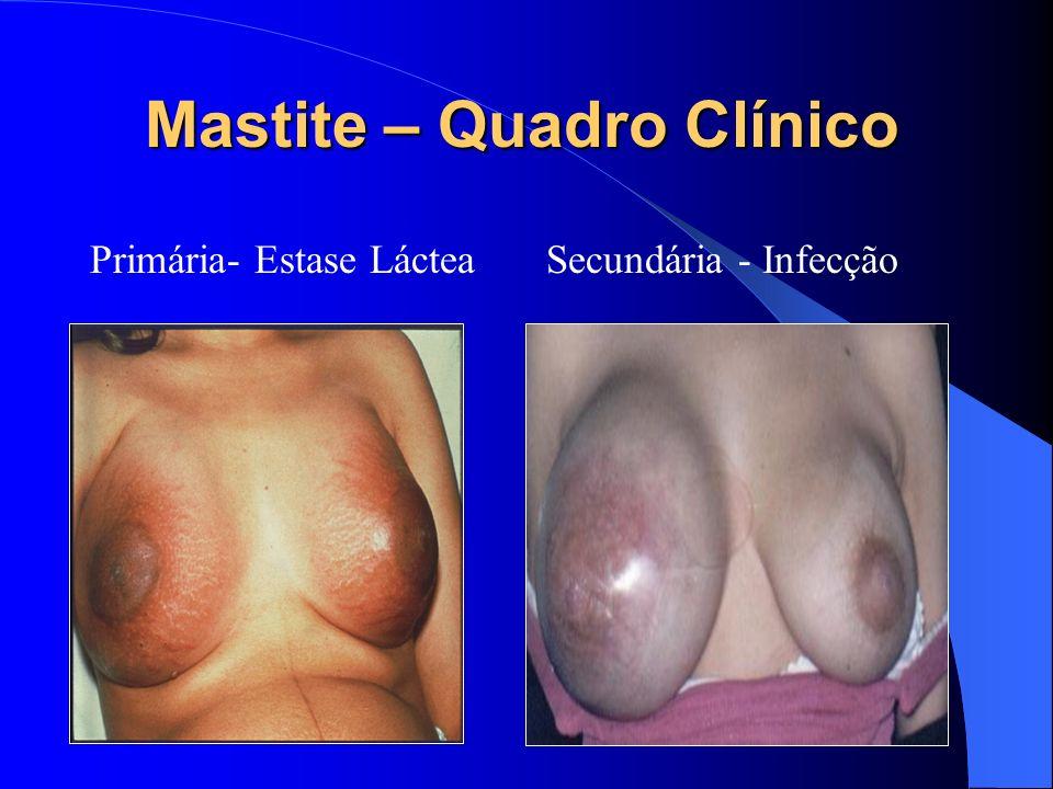 Mastite – Quadro Clínico