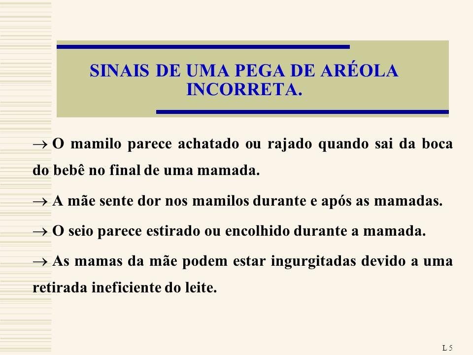 SINAIS DE UMA PEGA DE ARÉOLA INCORRETA.