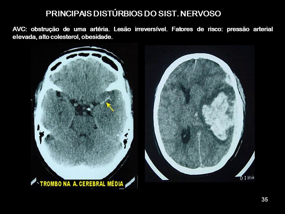 PRINCIPAIS DISTÚRBIOS DO SIST. NERVOSO