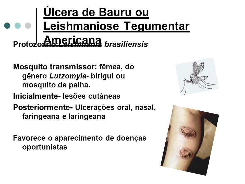 Úlcera de Bauru ou Leishmaniose Tegumentar Americana
