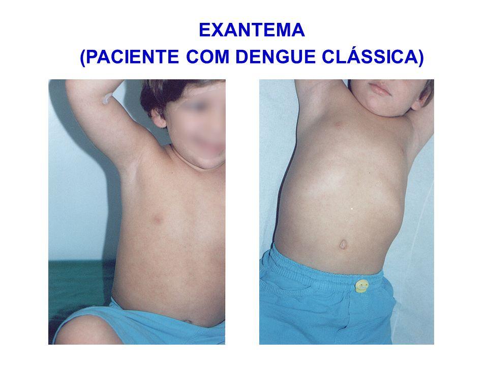 (PACIENTE COM DENGUE CLÁSSICA)
