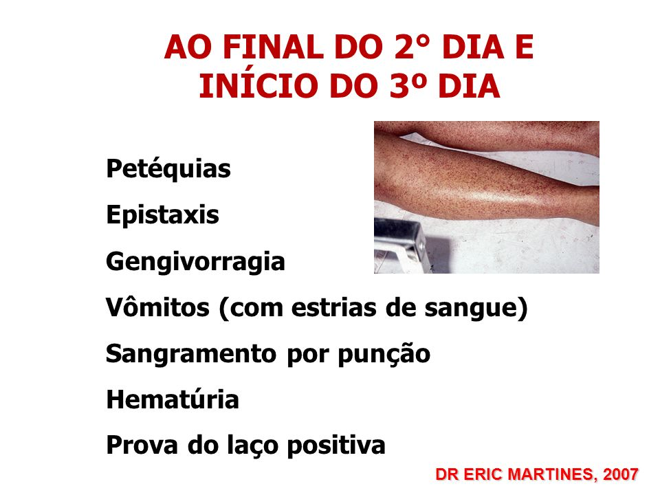 AO FINAL DO 2° DIA E INÍCIO DO 3º DIA