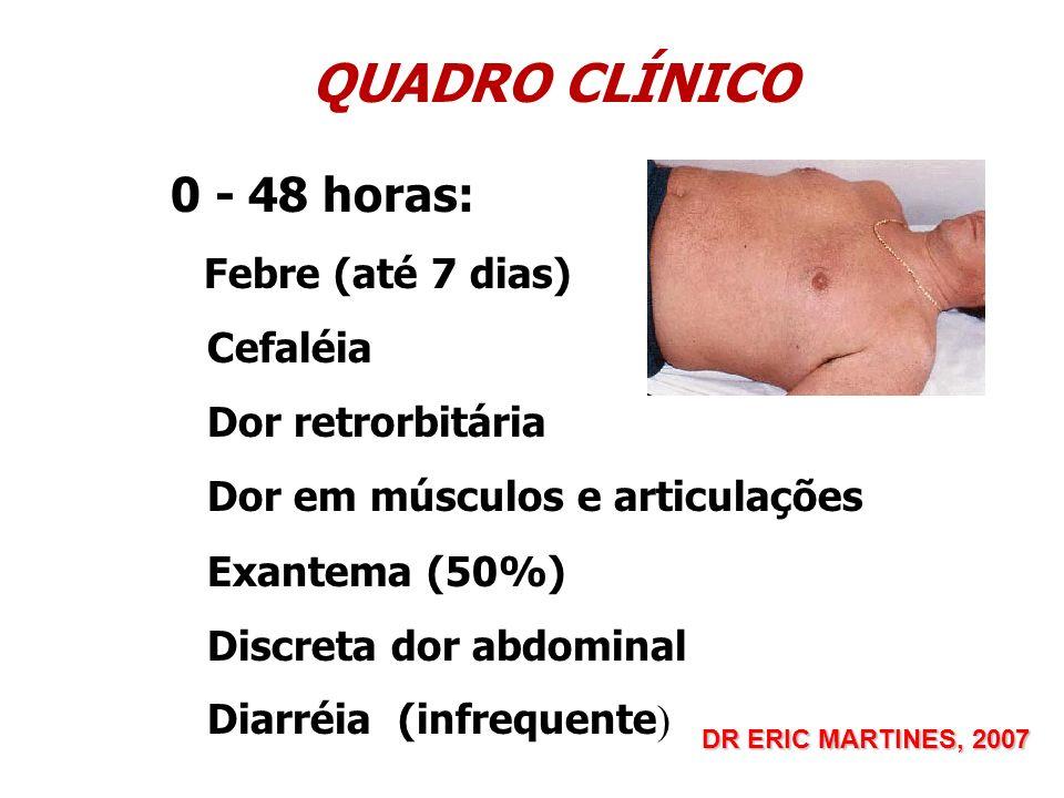 QUADRO CLÍNICO 0 - 48 horas: Cefaléia Dor retrorbitária