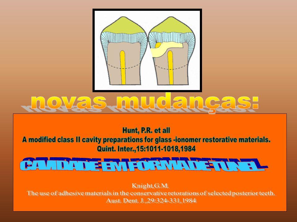 CAVIDADE EM FORMA DE TUNEL.