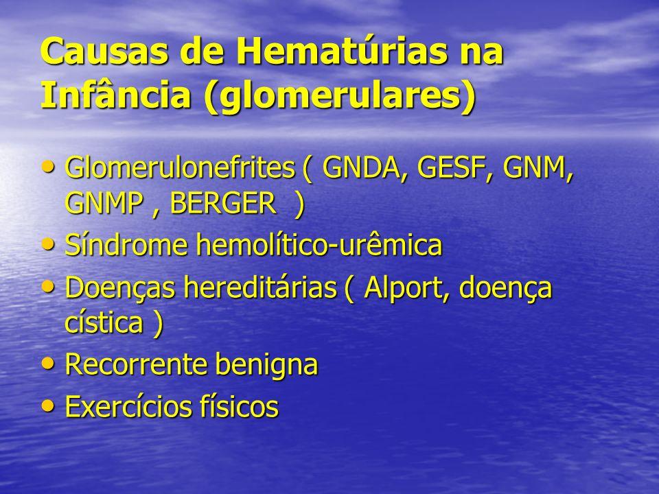 Causas de Hematúrias na Infância (glomerulares)