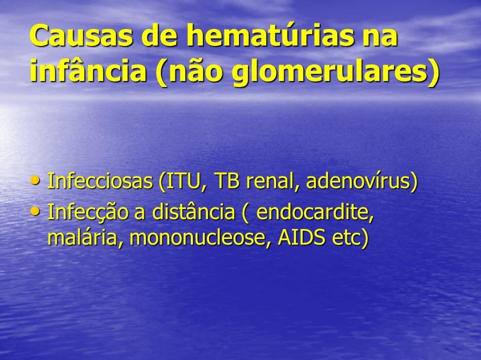 Causas de hematúrias na infância (não glomerulares)
