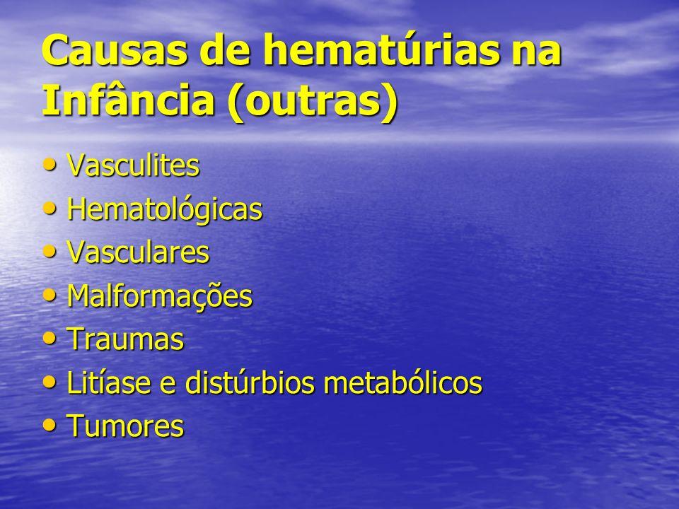 Causas de hematúrias na Infância (outras)