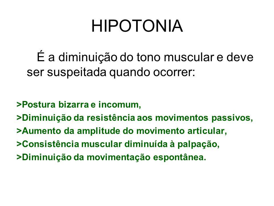 HIPOTONIAÉ a diminuição do tono muscular e deve ser suspeitada quando ocorrer: >Postura bizarra e incomum,
