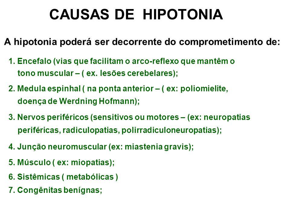 CAUSAS DE HIPOTONIA A hipotonia poderá ser decorrente do comprometimento de: 1. Encefalo (vias que facilitam o arco-reflexo que mantêm o.