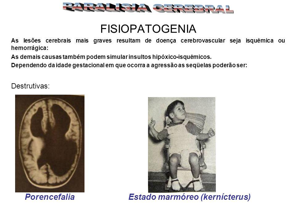 Porencefalia Estado marmóreo (kernícterus)