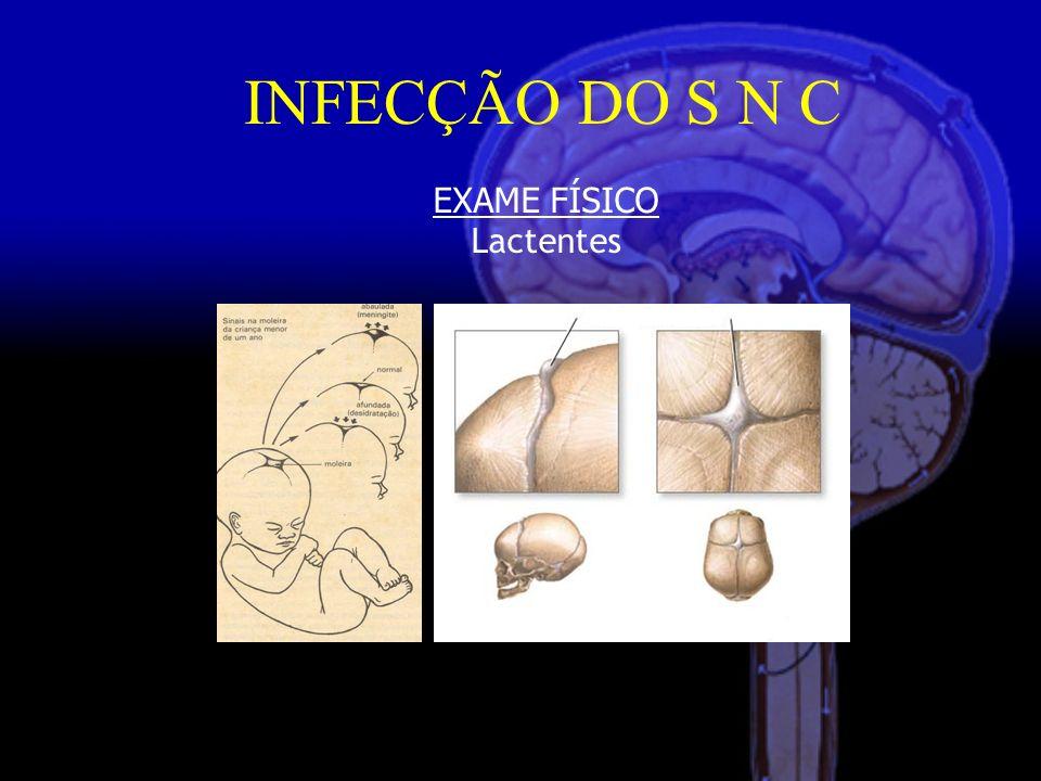 INFECÇÃO DO S N C EXAME FÍSICO Lactentes