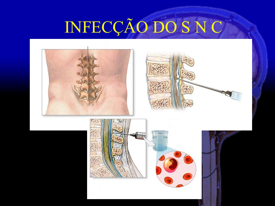 INFECÇÃO DO S N C