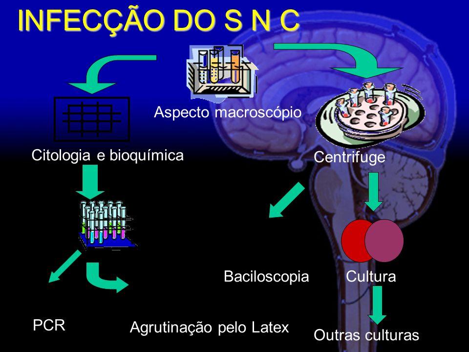 INFECÇÃO DO S N C Aspecto macroscópio Centrifuge