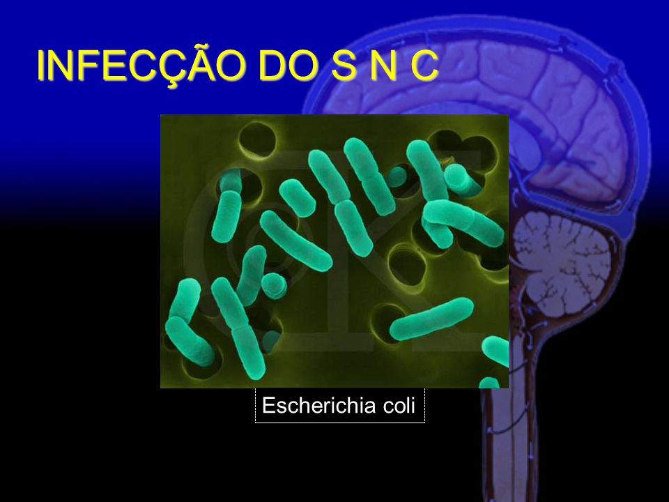 INFECÇÃO DO S N C Escherichia coli
