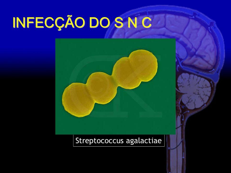 INFECÇÃO DO S N C Streptococcus agalactiae