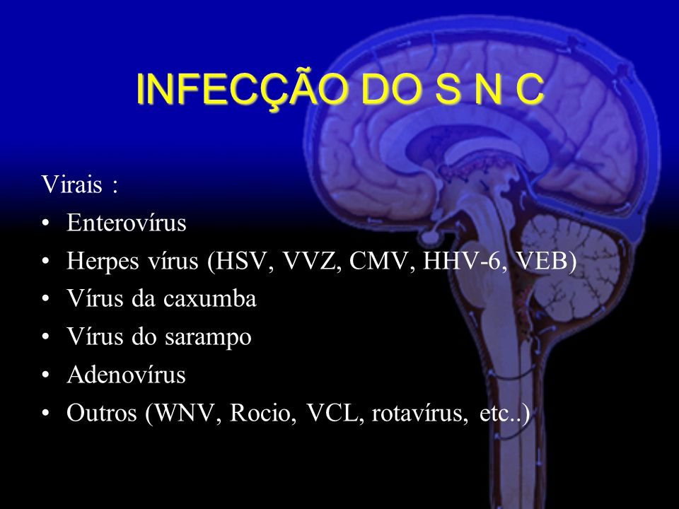 INFECÇÃO DO S N C Virais : Enterovírus