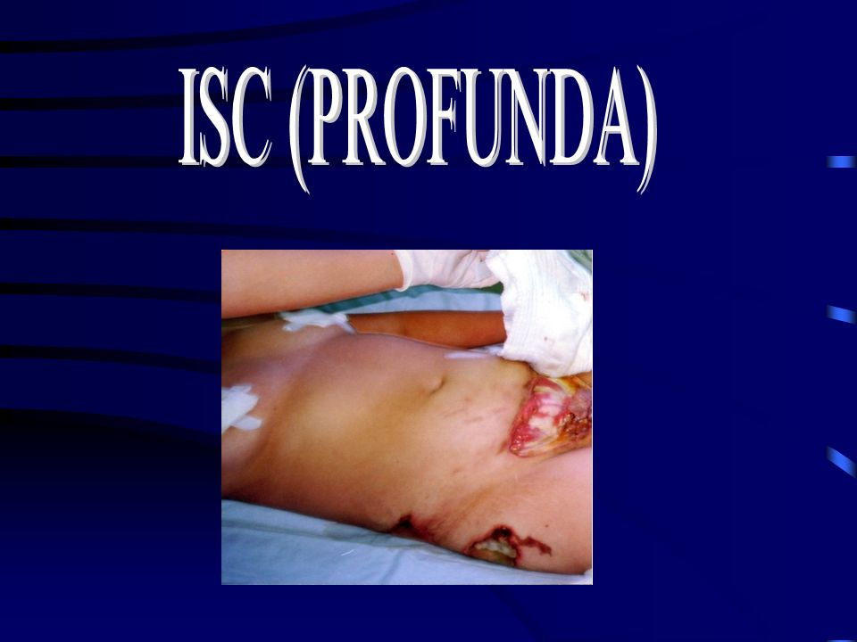 ISC (PROFUNDA)