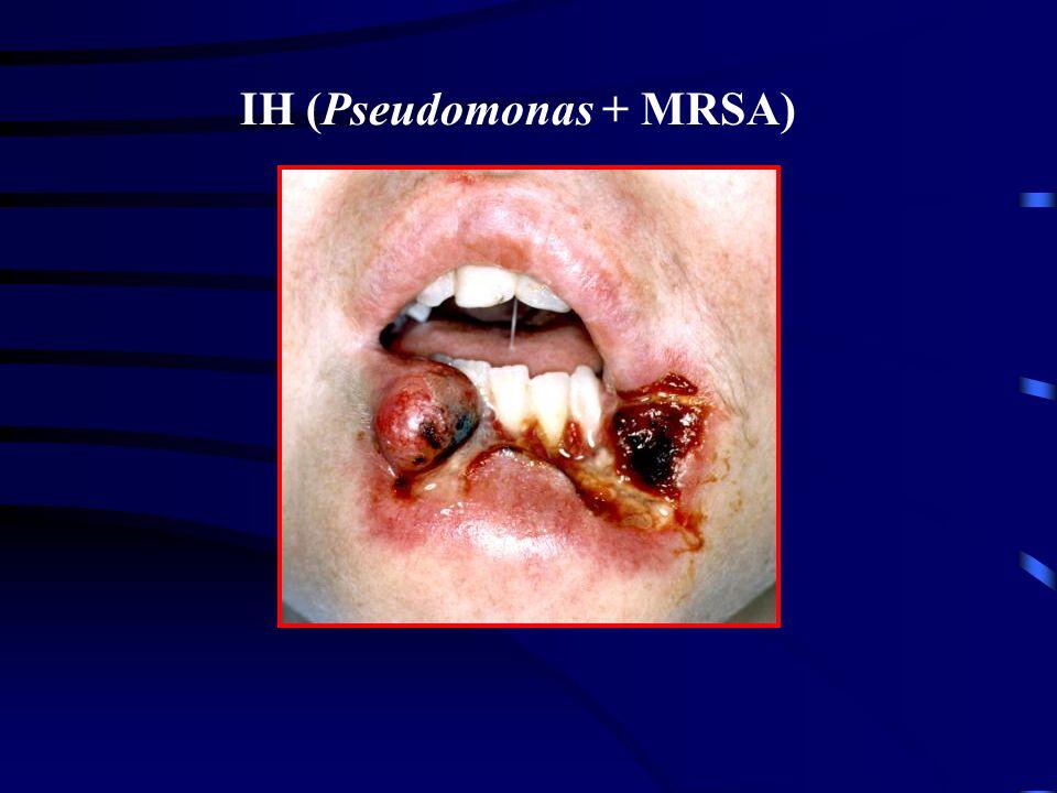 IH (Pseudomonas + MRSA)