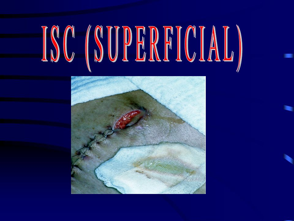ISC (SUPERFICIAL)