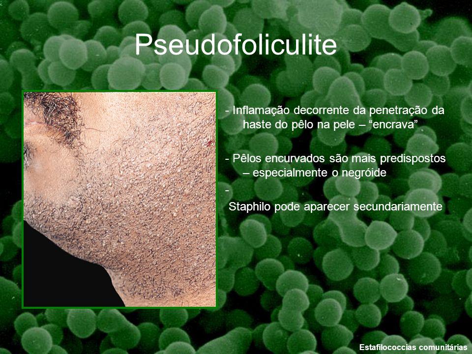 Pseudofoliculite - Inflamação decorrente da penetração da haste do pêlo na pele – encrava
