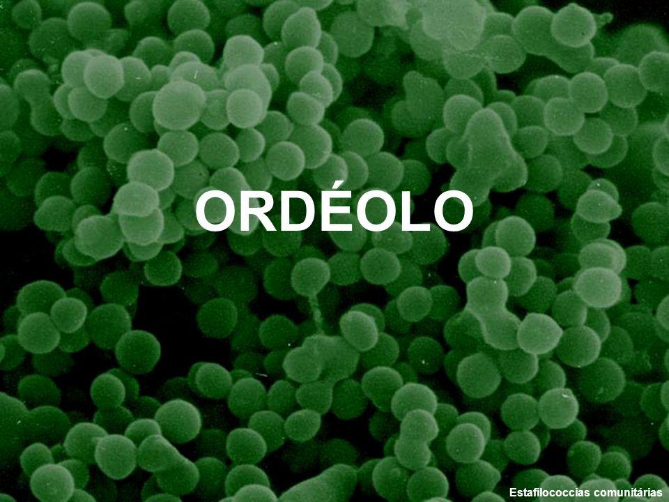 ORDÉOLO