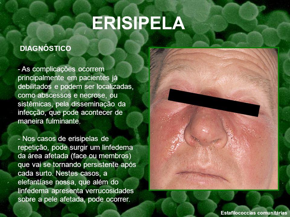 ERISIPELA DIAGNÓSTICO
