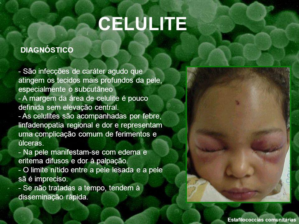 CELULITE DIAGNÓSTICO. - São infecções de caráter agudo que atingem os tecidos mais profundos da pele, especialmente o subcutâneo.