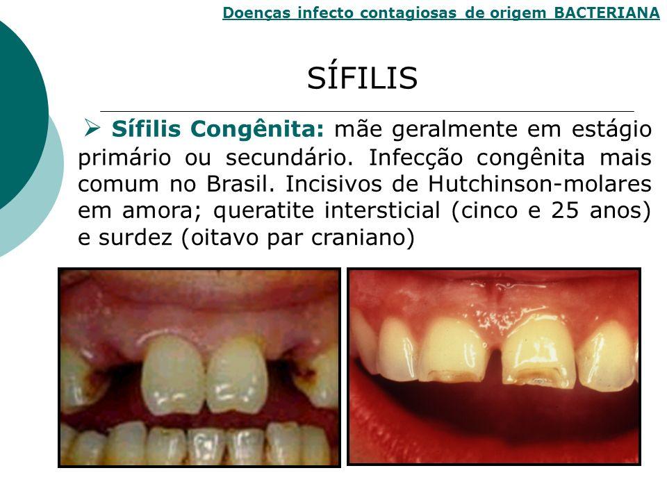 SÍFILIS Doenças infecto contagiosas de origem BACTERIANA