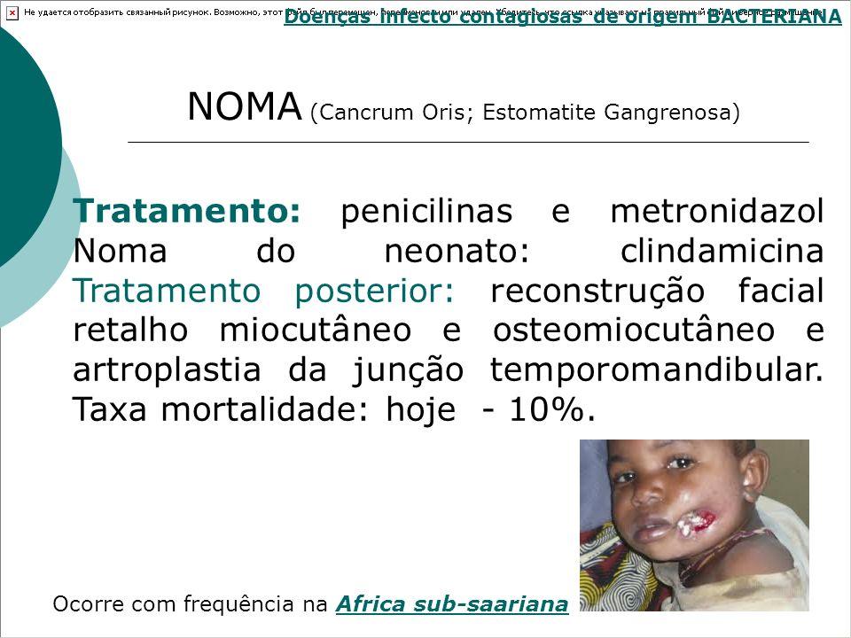 NOMA (Cancrum Oris; Estomatite Gangrenosa)