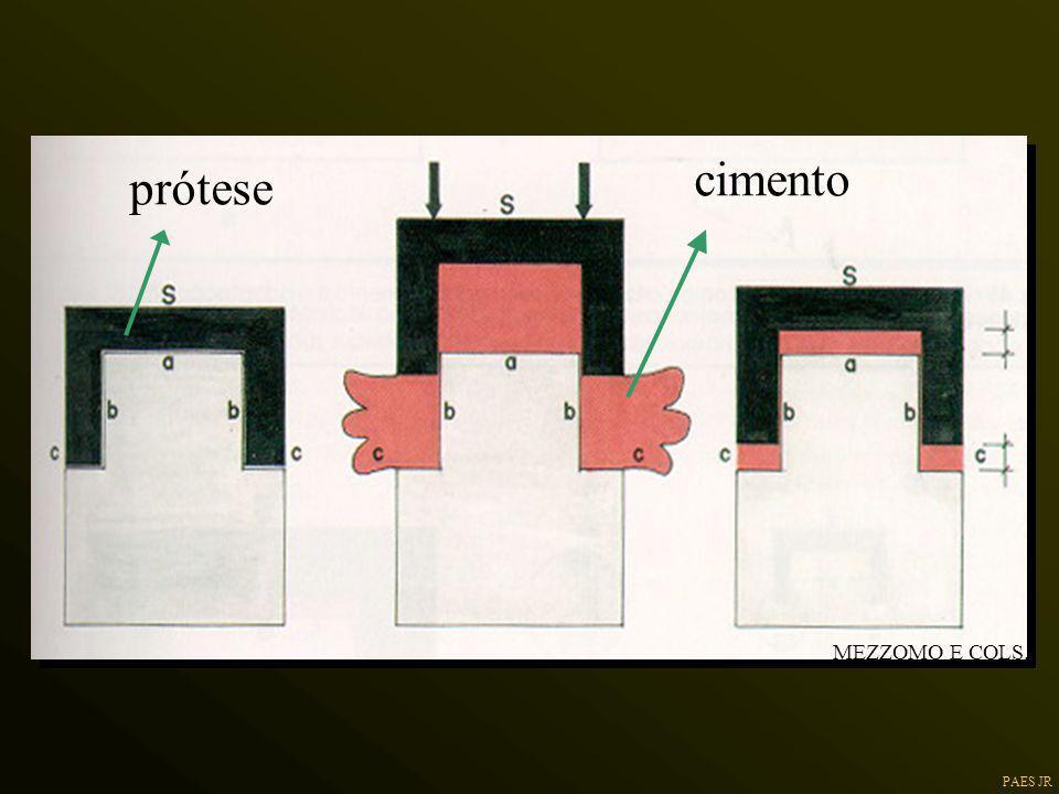 cimento prótese MEZZOMO E COLS.