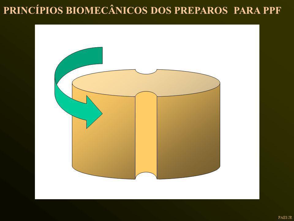 PRINCÍPIOS BIOMECÂNICOS DOS PREPAROS PARA PPF