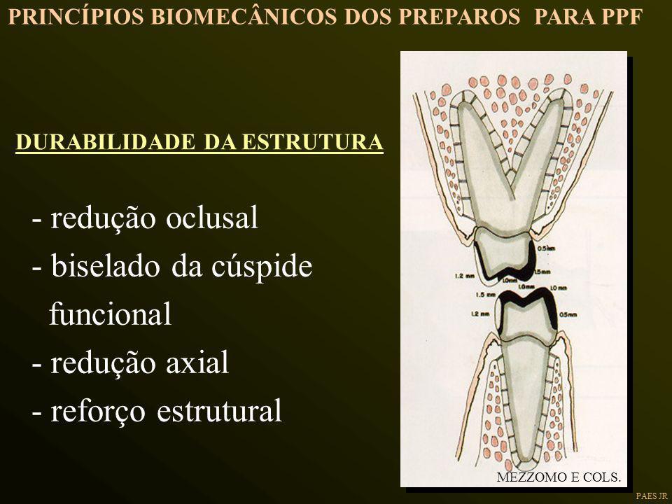 - redução oclusal - biselado da cúspide funcional - redução axial