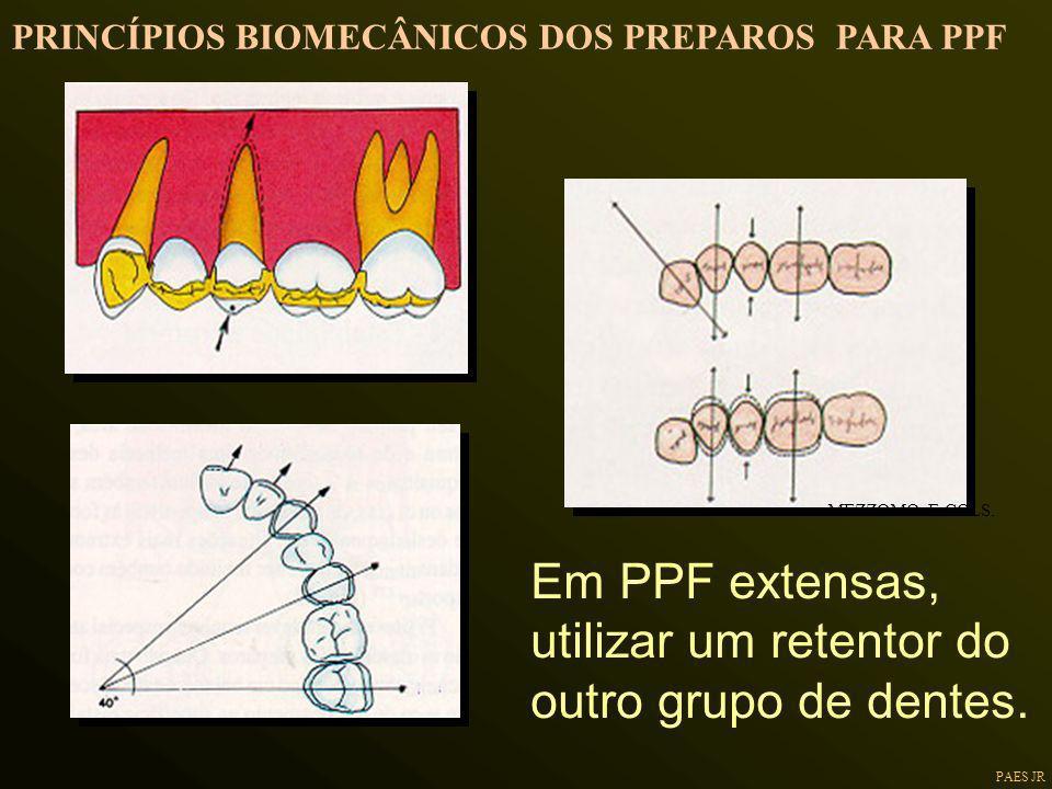 Em PPF extensas, utilizar um retentor do outro grupo de dentes.