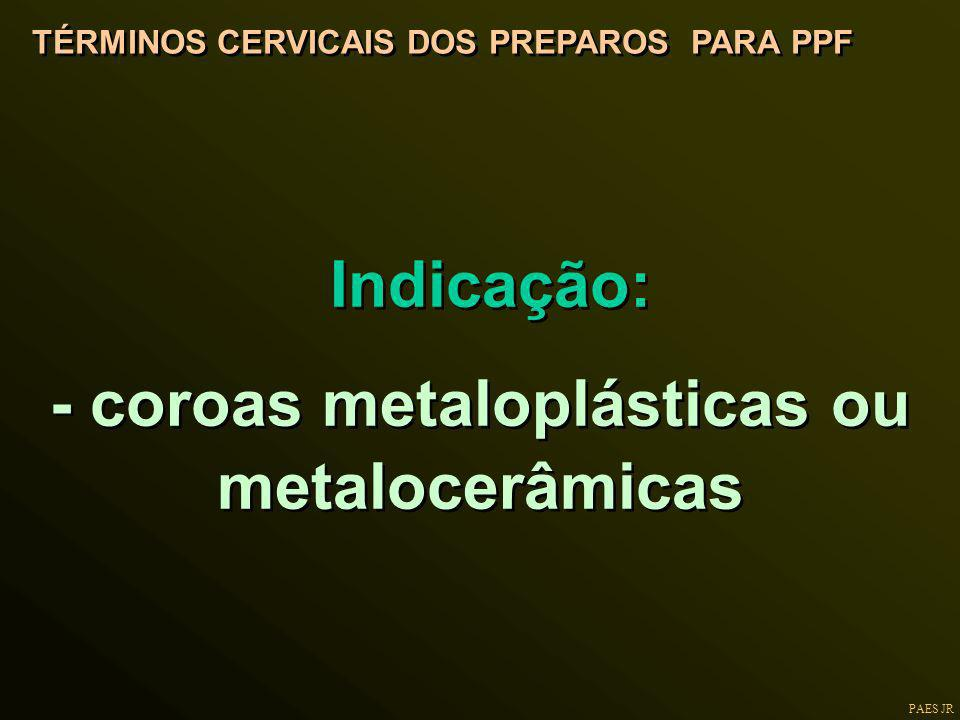 - coroas metaloplásticas ou metalocerâmicas