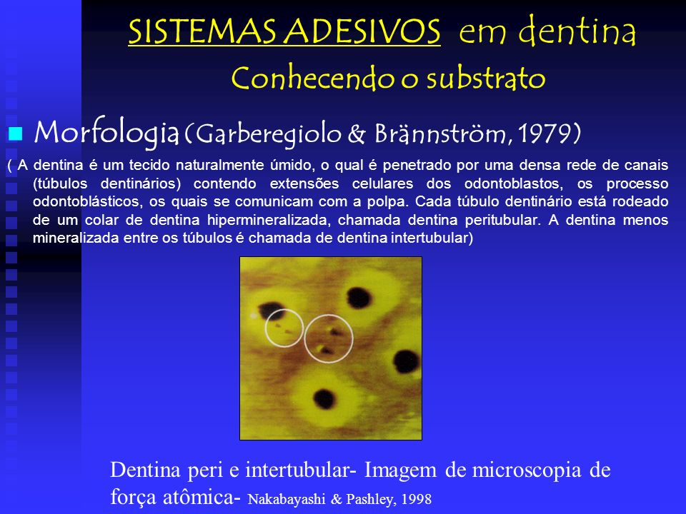 SISTEMAS ADESIVOS em dentina Conhecendo o substrato