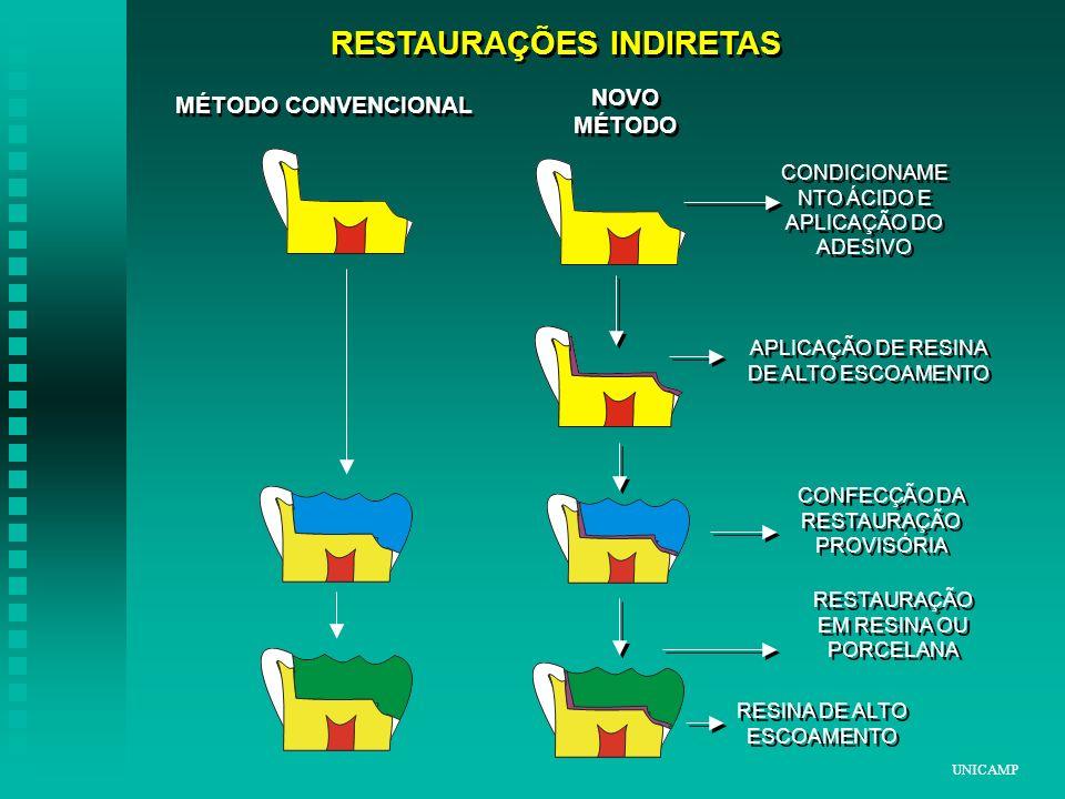 RESTAURAÇÕES INDIRETAS