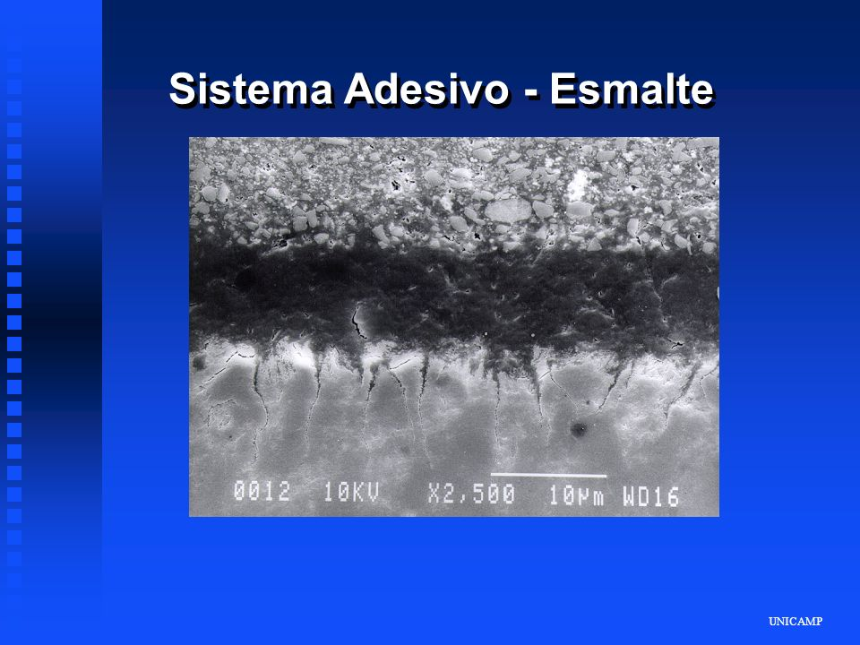 Sistema Adesivo - Esmalte