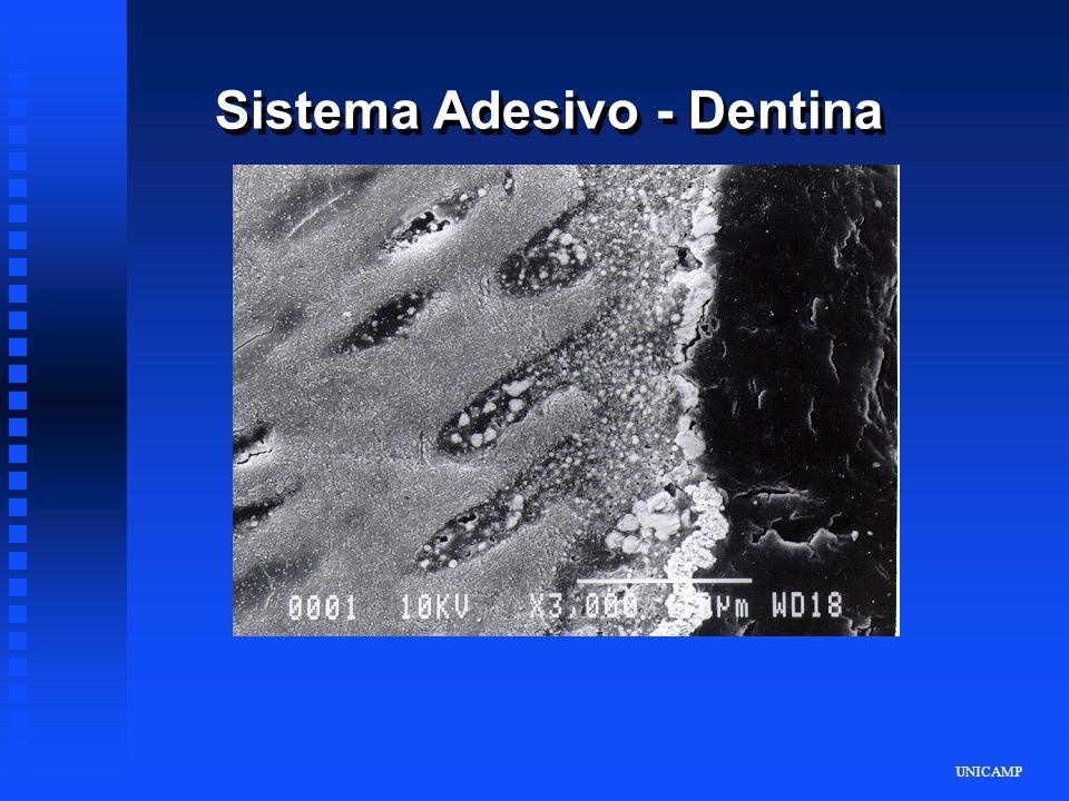 Sistema Adesivo - Dentina