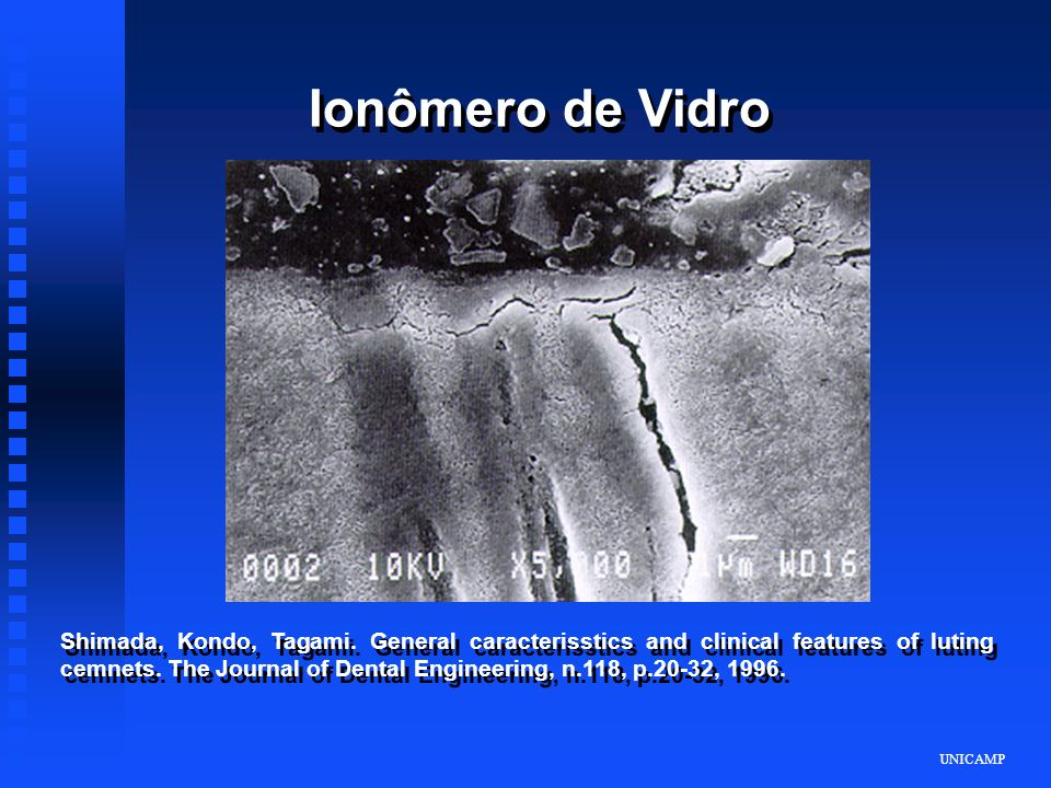 Ionômero de Vidro