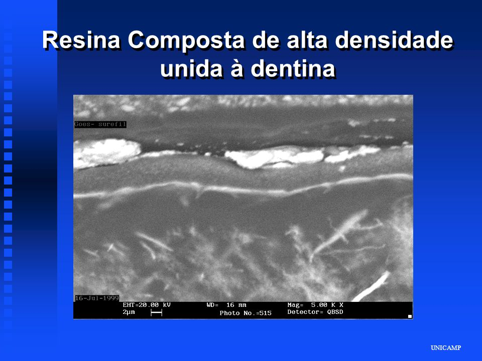 Resina Composta de alta densidade unida à dentina
