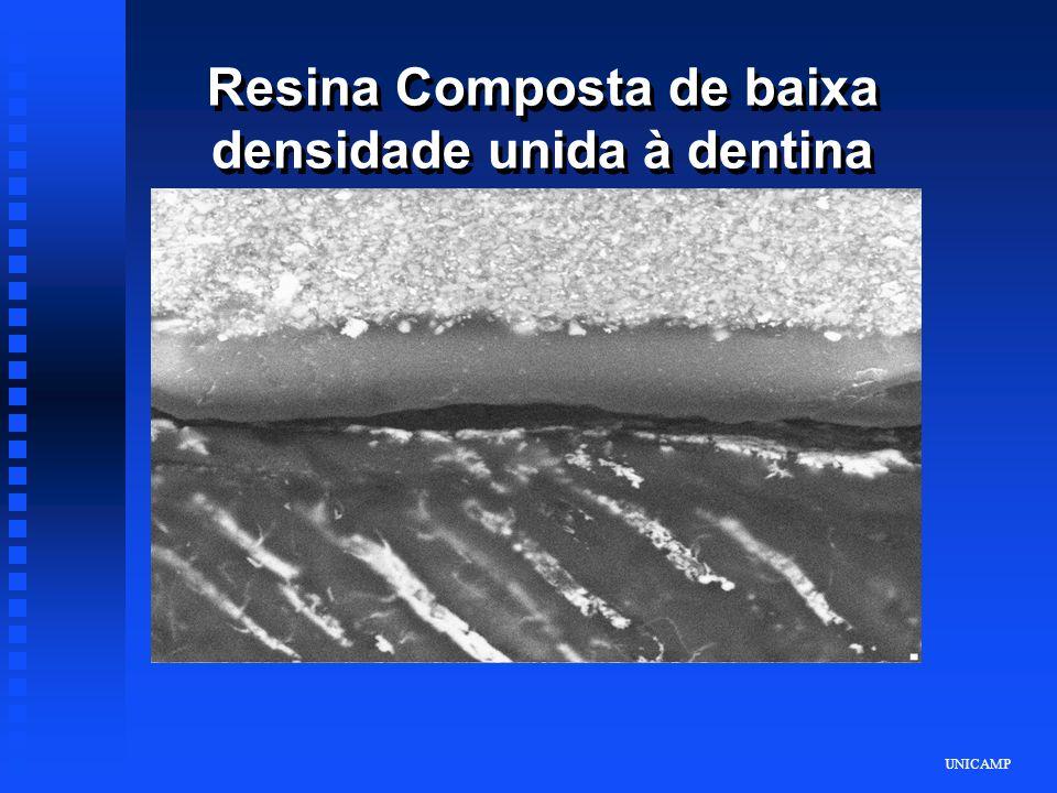 Resina Composta de baixa densidade unida à dentina