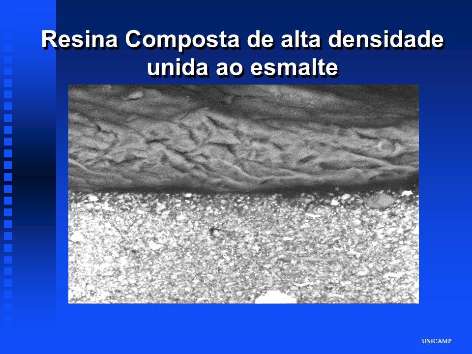 Resina Composta de alta densidade unida ao esmalte