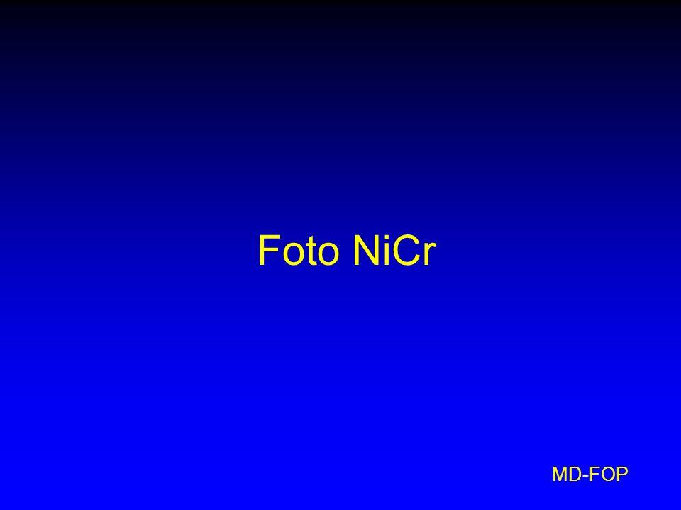 Foto NiCr MD-FOP