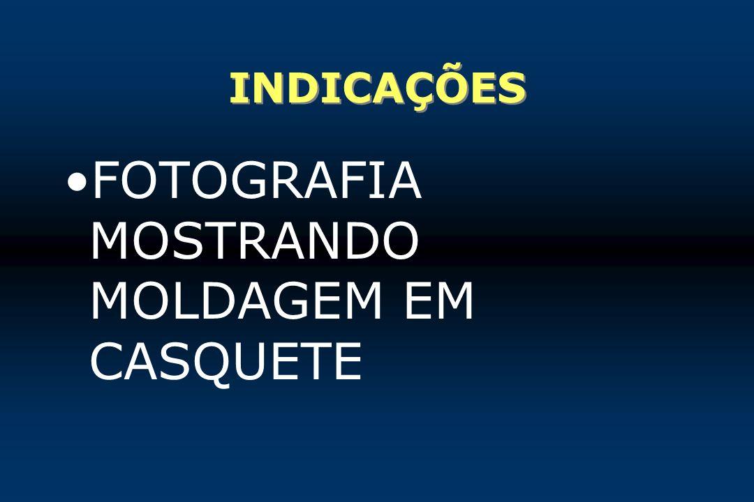FOTOGRAFIA MOSTRANDO MOLDAGEM EM CASQUETE